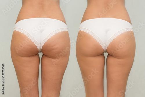 Obraz na plátně Female buttocks before and after treatment comparison