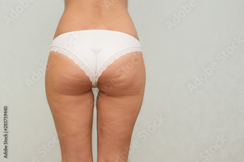 Fotografie, Obraz Woman buttocks and legs with cellulite close up.