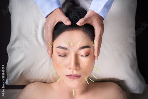 woman undergoing acupuncture treatment on face Canvas Print
