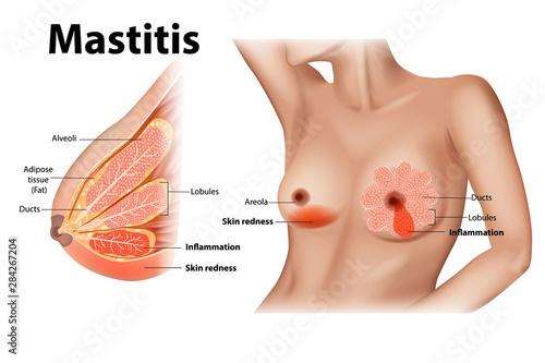 Fotografia, Obraz Mastitis is inflammation of the breast