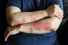 Dermatological Skin Disease. P...