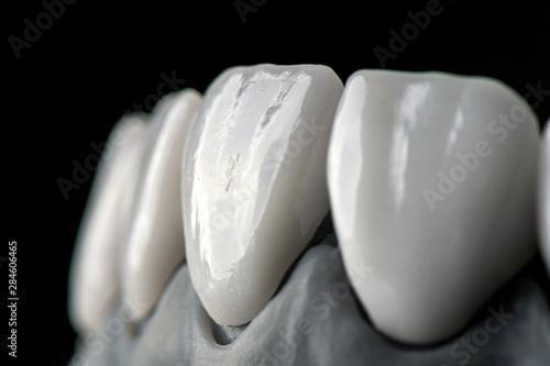 Fotomural White front teeth veneers on diagnostic model on dark background