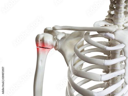 Fotografija 3d rendered medically accurate illustration of a broken humerus