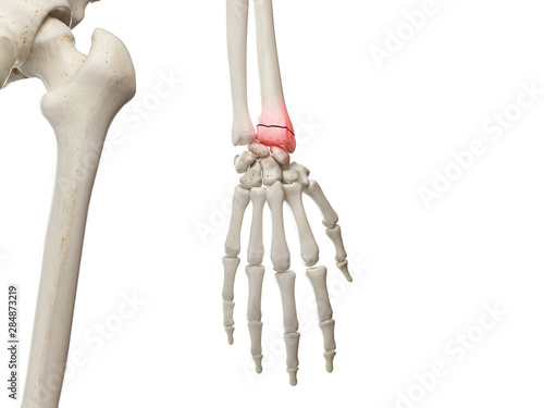 Canvas-taulu 3d rendered medically accurate illustration of a broken wrist