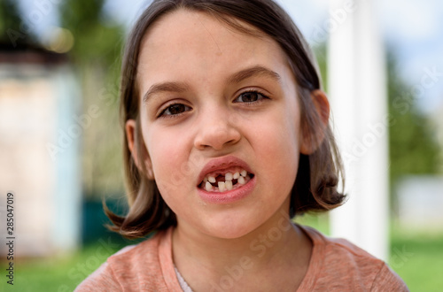 Canvas Print Portrait of toothless child girl missing milk and permanent teeth