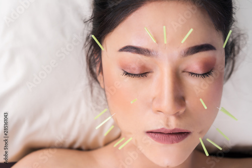 Photo woman undergoing acupuncture treatment on face