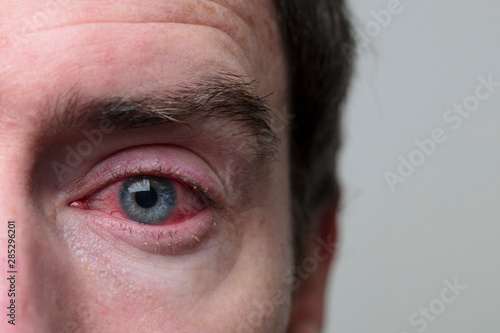 Close up of a severe bloodshot eye Canvas Print