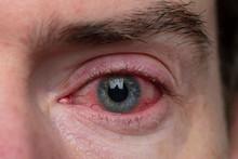 Close Up Of A Severe Bloodshot...