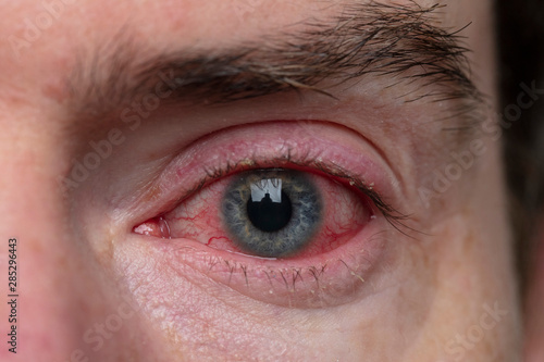 Close up of a severe bloodshot eye Wallpaper Mural