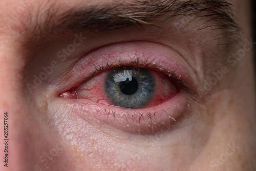 Close up of a severe bloodshot eye Canvas Print