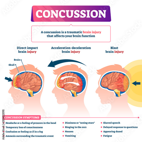 Photo Concussion vector illustration