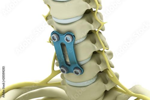 Obraz na plátně Cervical vertebrae fixed with a metal plate and screws