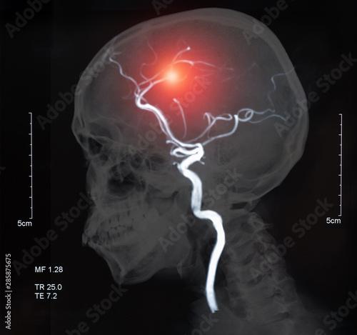 brain stroke Canvas Print