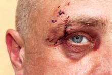 Male Eye With A Large Purple Bruise. Biting Dog On Face. Eye Injury. Large Bruising On The Male Eye. Treatment Of Injuries. Boxer Eye.