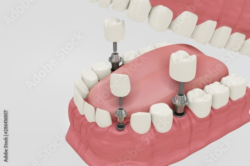 Dental Implants Treatment Procedure Wallpaper Mural