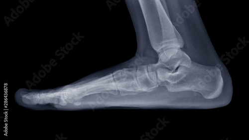 Photo Film X-ray foot radiograph show Flat foot deformity (pes planus or fallen arches) and abnormal union of tarsal bone( Calcaneonavicular coalition)