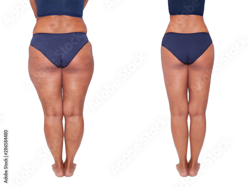 Comparison Before And After Weight Loss Women S Legs The Result Of Liposuction The Fight Against Obesity And Cellulite Skin Rejuvenation Fitness And Nutrition Buy This Stock Photo And Explore Similar Images