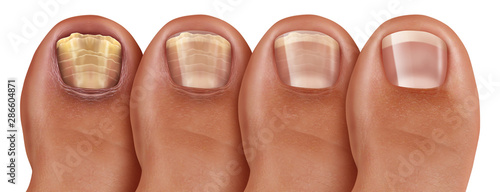 Fungal Nail Infection Recovery Fotobehang