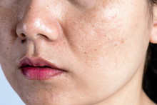 Woman With Problematic Skin An...