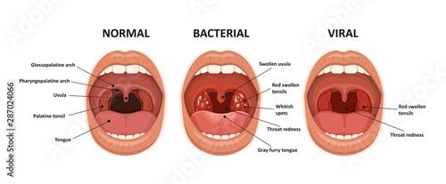 Fotografie, Obraz Tonsillitis bacterial and viral