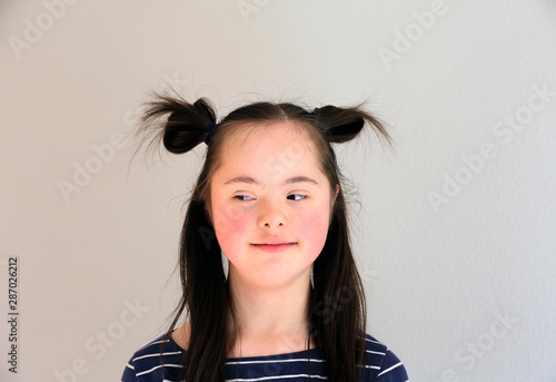 Fotografie, Obraz  Cute smiling down syndrome girl on the grey background