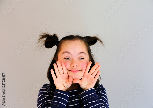 Obraz na plátně  Cute smiling down syndrome girl on the grey background