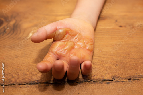 Fotomural  火傷をした子供の手