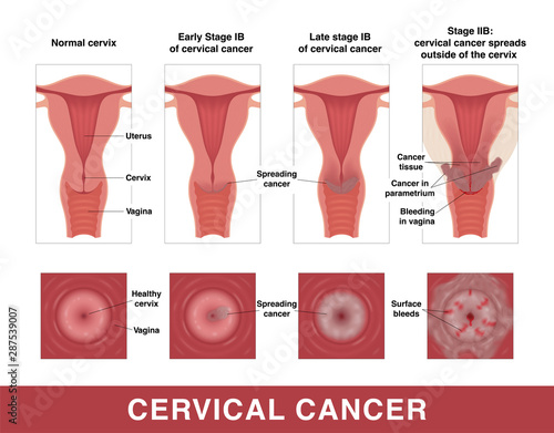 Vászonkép Cervical cancer
