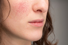 A Close Up View On The Soft And Cracked Lips Of A Beautiful Female Mouth, Visible Rosacea And Blushing Cheeks, Common Skin Complaints Of Dry Skin In The Cold Winter Months.