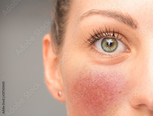 Fototapeta A closeup view on the eye and cheek of a young woman suffering from red blotchy cheeks, blushing caucasian girl with green and teal eyes and copy space on the left. obraz