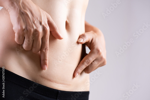 Closeup of woman showing on her belly dark scar from a cesarean section Canvas Print