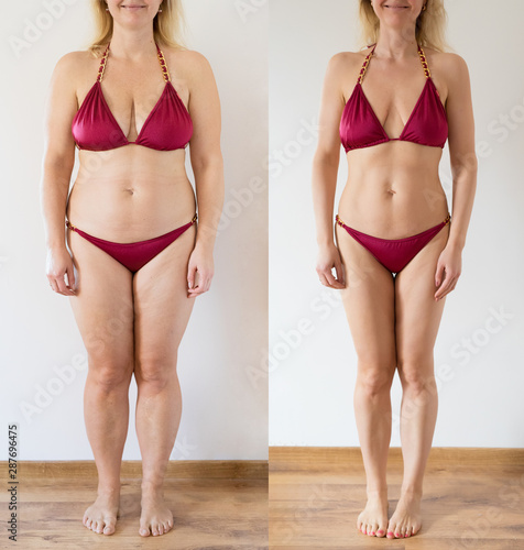 Fotografía Real photo of woman before and after weight loss