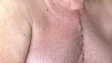 Scar From Open Heart Surgery, ...