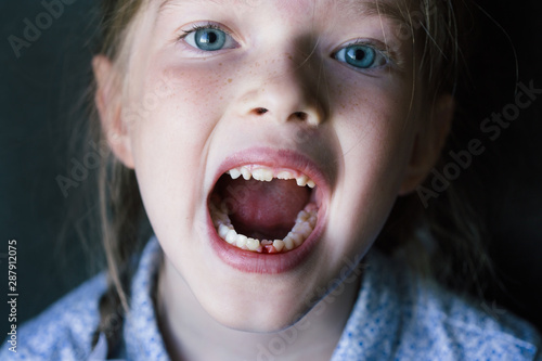 Fototapeta  little girl opened and shows a hole from a lost milk tooth