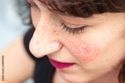 Fotografie, Obraz  A closeup and high angle view of a pretty woman suffering from persistent facial redness (erythema) and visible blood vessels, all symptoms of rosacea, with copy space