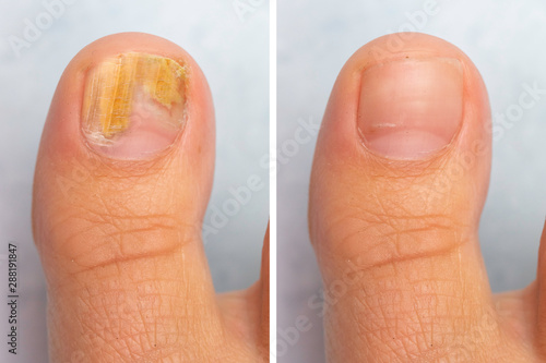 Fotografie, Obraz Before and after topical antifungal treatment is seen in the big toe of a person suffering from Onychomycosis, a fungal infection causing yellowing of the toenail