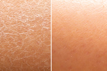 Before And After Skin Moisturi...