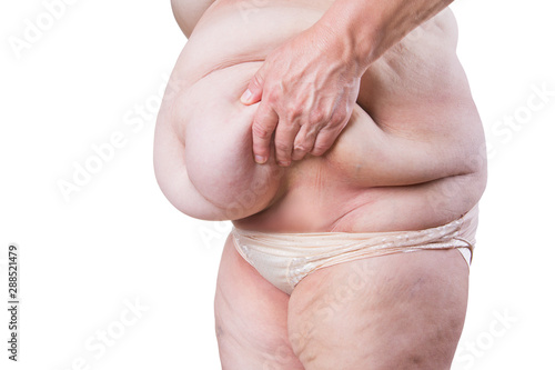 Fototapeta  Tummy tuck, flabby skin on a fat belly, plastic surgery concept isolated on whit