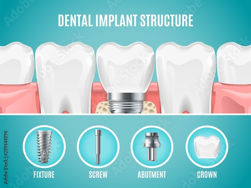 Photo Dental implant structure