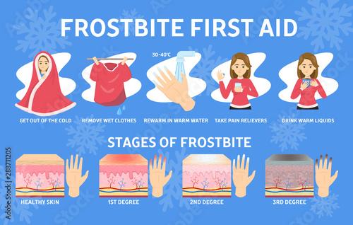 Frostbite first aid infographic. Hypothermia in cold winter Tapéta, Fotótapéta