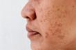 Skin problem, skin face asian women with spot melasma,  Dark spots, freckles, pigmentation  Skincare problem concept.
