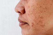 Skin Problem, Skin Face Asian ...