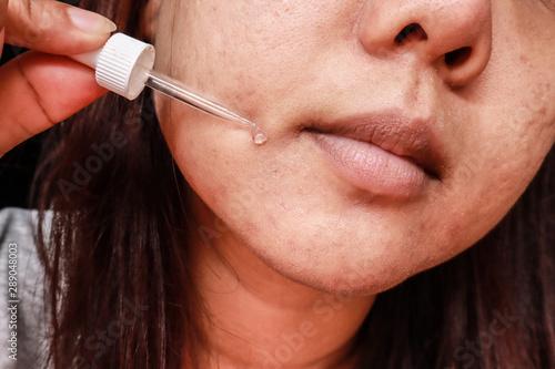 Fotografía  Close up photo of acne skin problem, Asian woman applying anti-ageing moisturizi