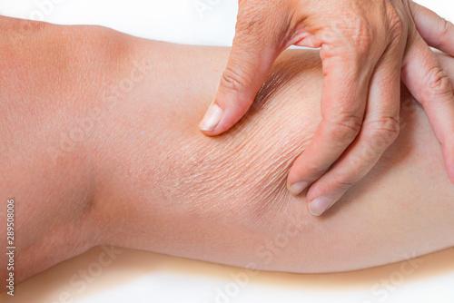 Fotografie, Obraz  trockene Haut an der Wade, schlaffes Bindegewebe