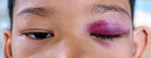 Close-up Of Bruised Eye Of Asian Boy, Black And Blue Wound Hurt From Accident.