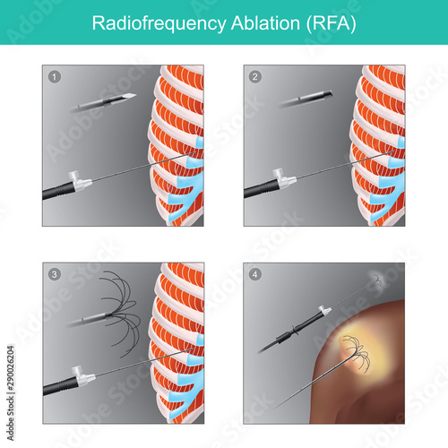 Radio frequency Ablation (RFA) Wallpaper Mural
