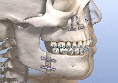 Maxillomandibular Advancement surgery Canvas Print