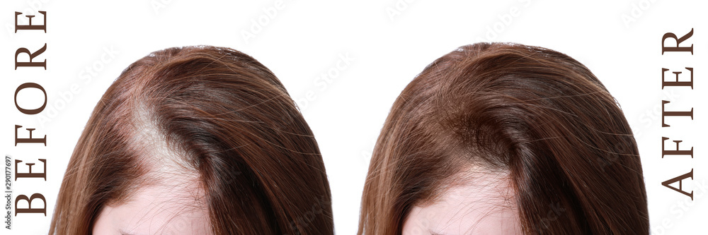 Fototapeta Woman before and after hair loss treatment on white background