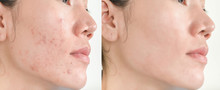 Before And After Retouch Face ...