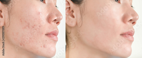Before and After Retouch face and  Freckles  Woman  and skin problems  Facial Tr Wallpaper Mural